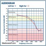 What is Audiogram and Audiometric Zero? How Audiogram is interpreted? WHO classification of Hearing loss.