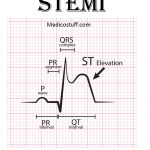 STEMI, its diagnosis and management.